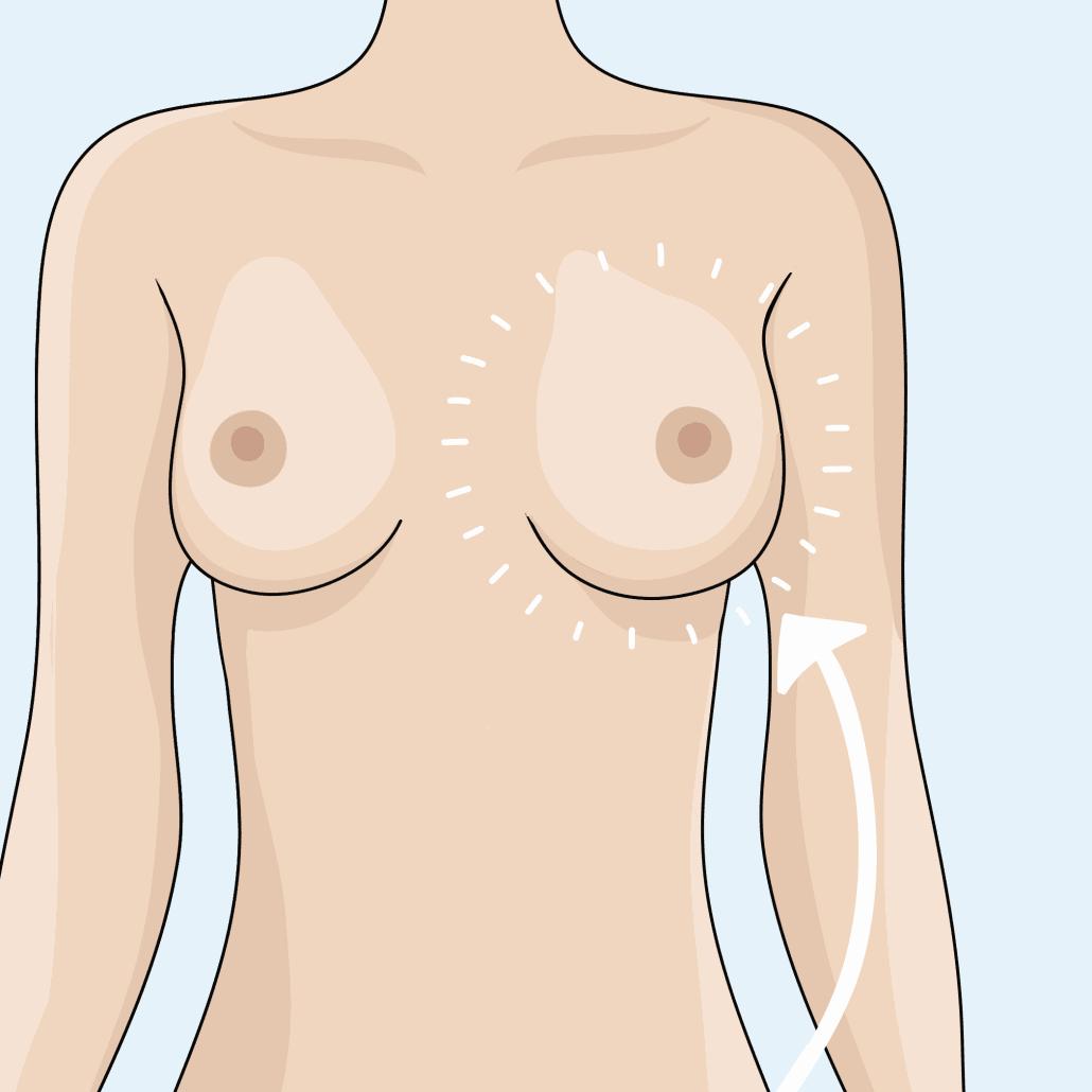Brustvergrößerung mit Eigenfett bei Dr. med. Katrin Müller in Hannover