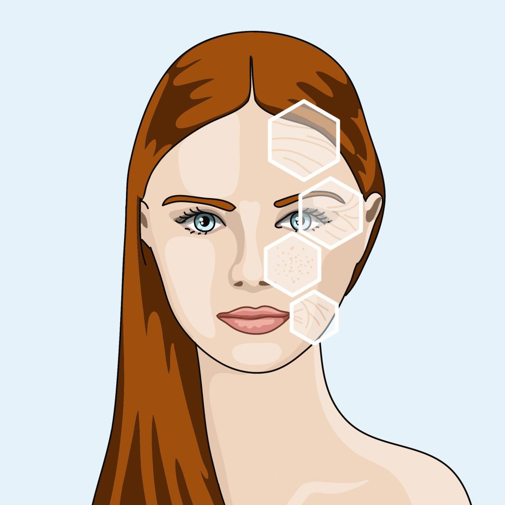 Peeling und Needling zur Verbesserung des Hautbildes in Hannover
