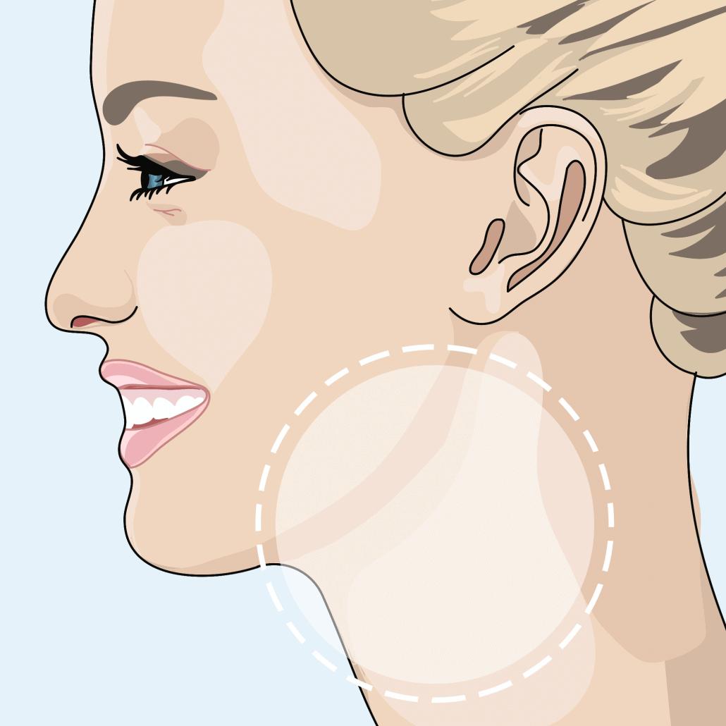 Konturierte Wangen und glatter Hals