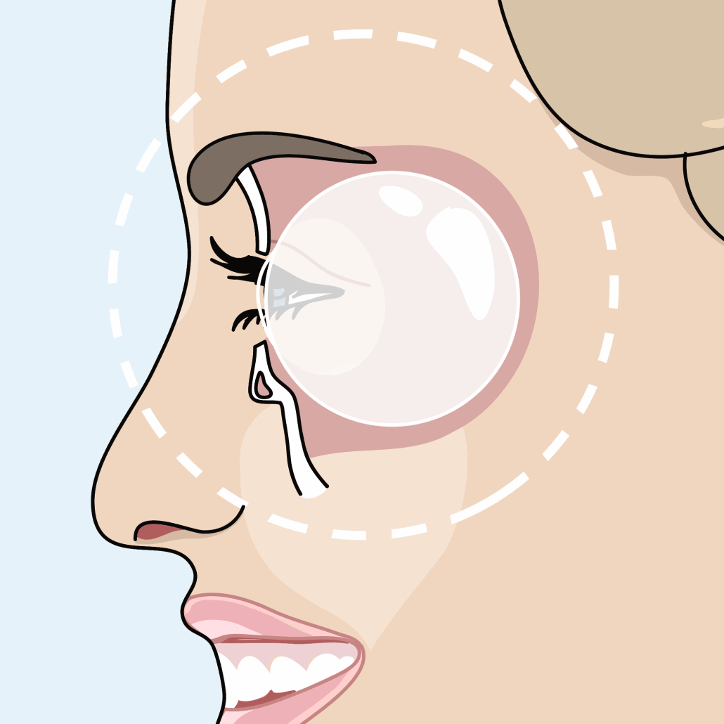 Mehr Lebensqualität nach der Entfernung von Tränensächen
