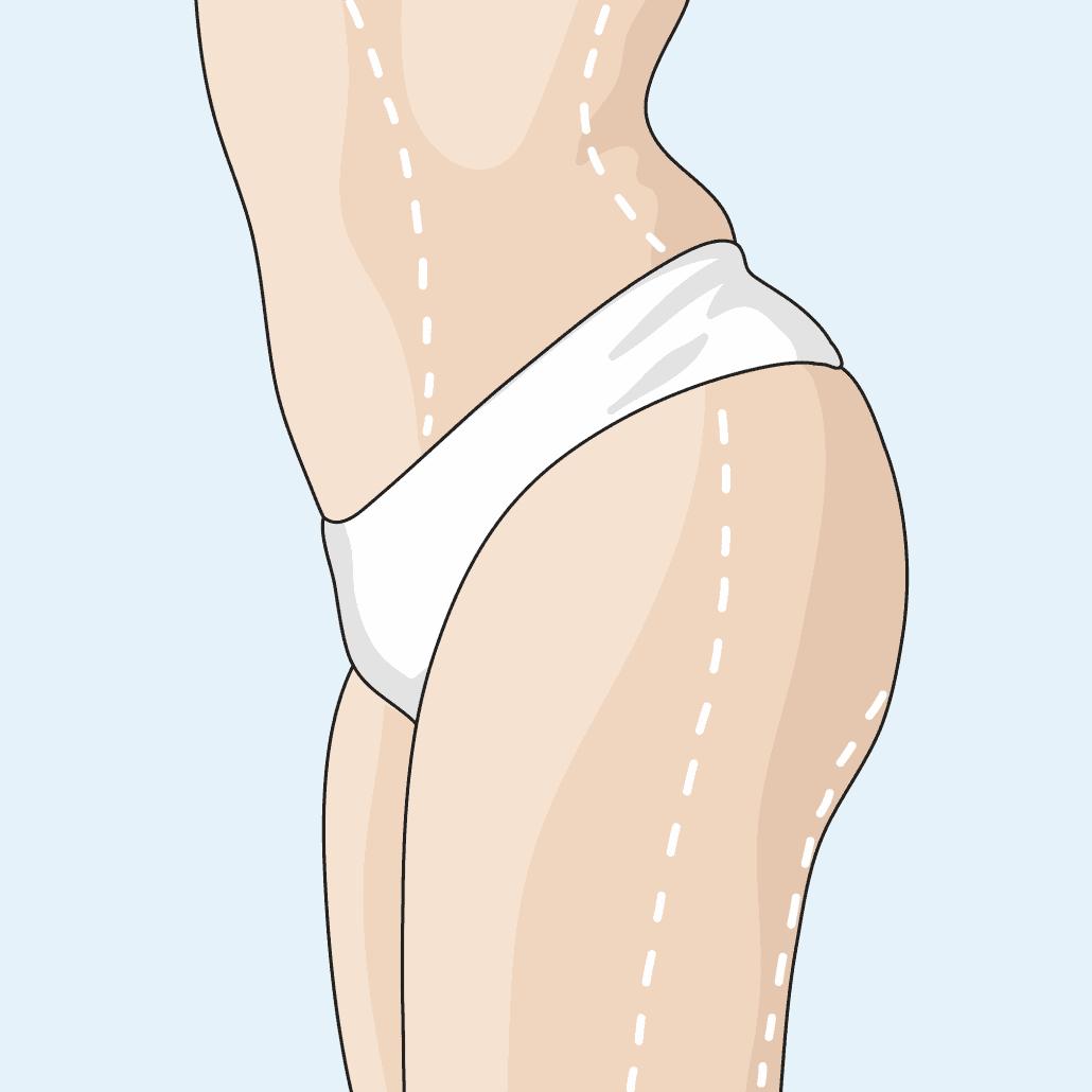 Fetttransplantation - Lipotransfer von Eigenfett bei Dr. Katrin Müller