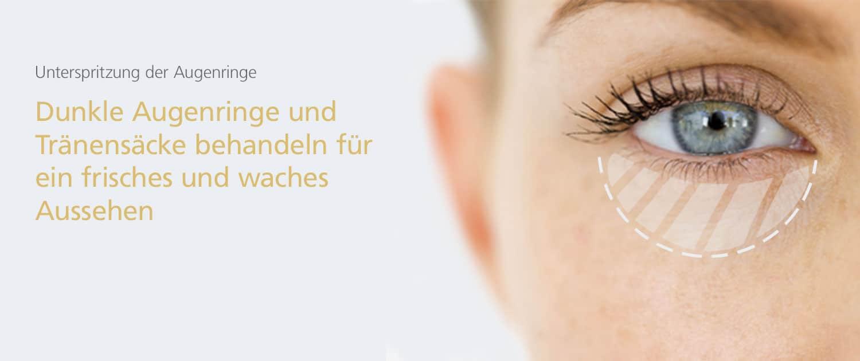 Augenringe und Tränensäcke behandeln in Hannover