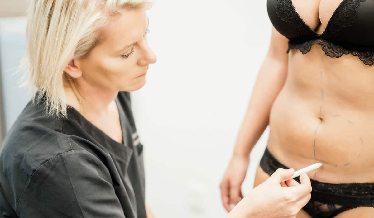 Fettabsaugung bei Dr. med. Katrin Müller
