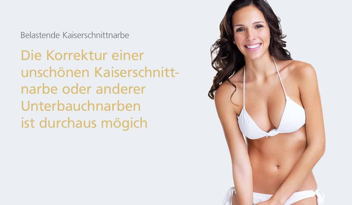 Kaiseschnittnarben-Korrektur bei Dr. med. Katrin Müller in Hannover