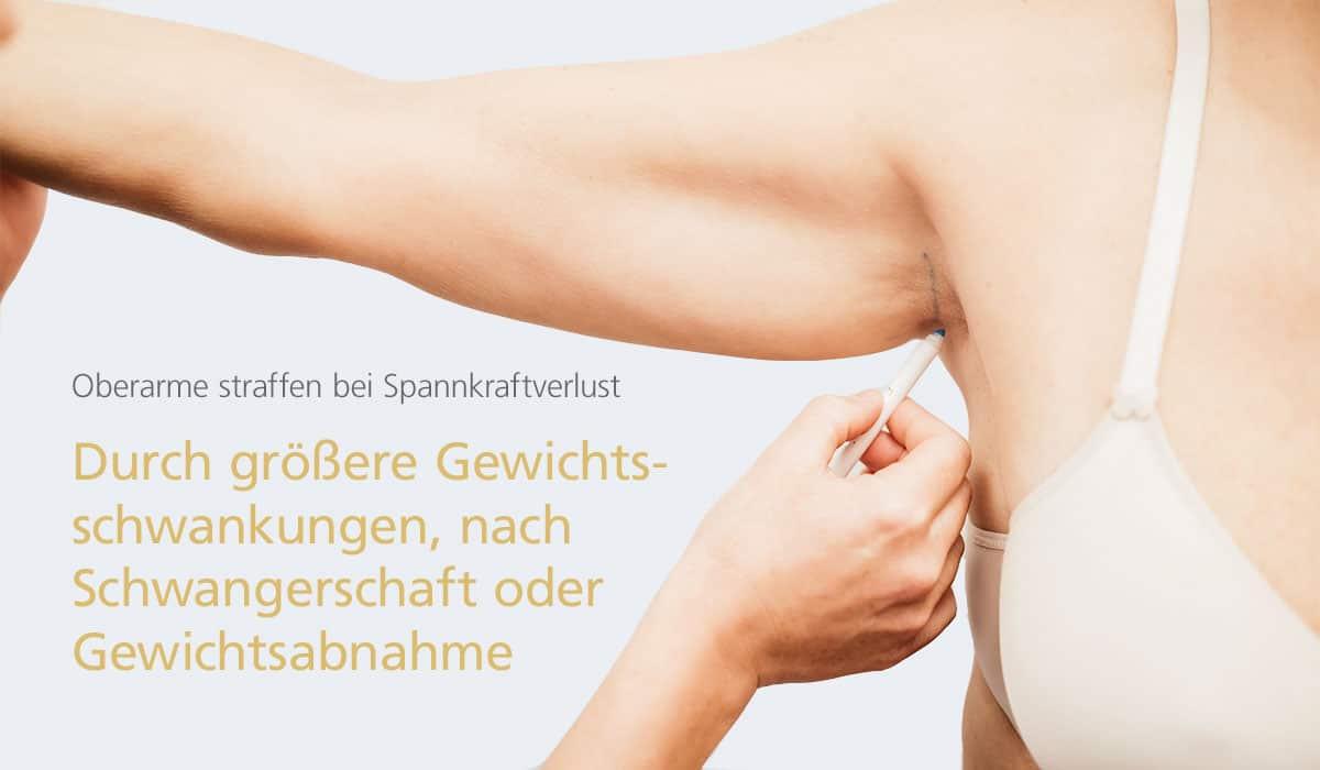 Oberarme straffen bei Dr. med. Katrin Müller in Hannover