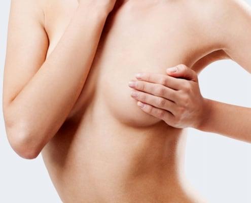 Bruststraffung bei der Klinik Dr. Katrin Müller in Hannover