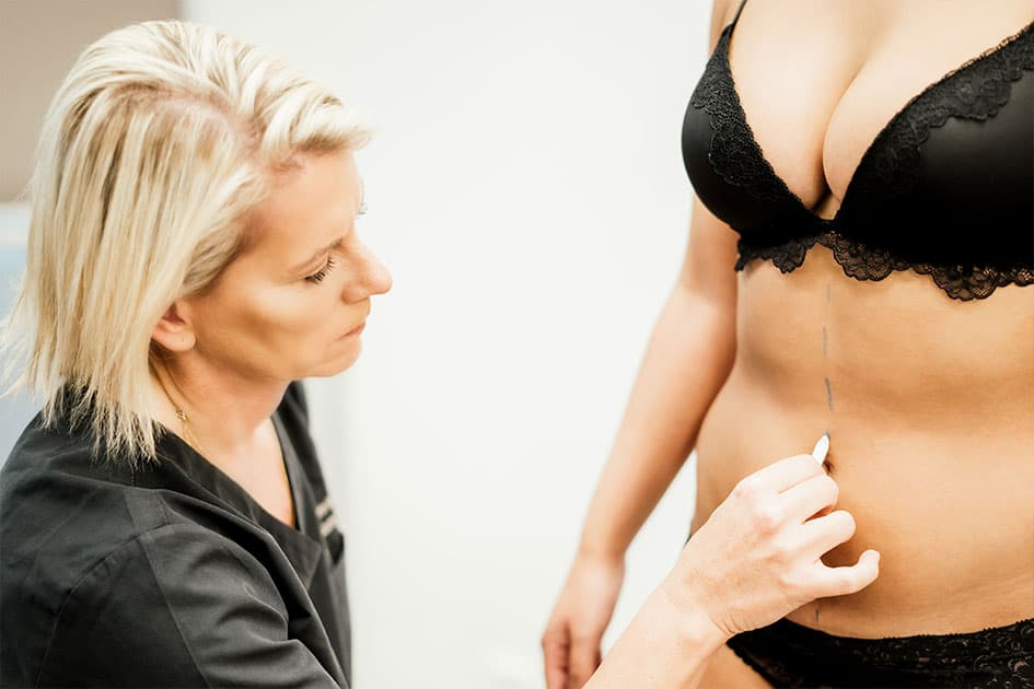 Bauchdeckenstraffung bei Dr. med. Katrin Müller in Hannover