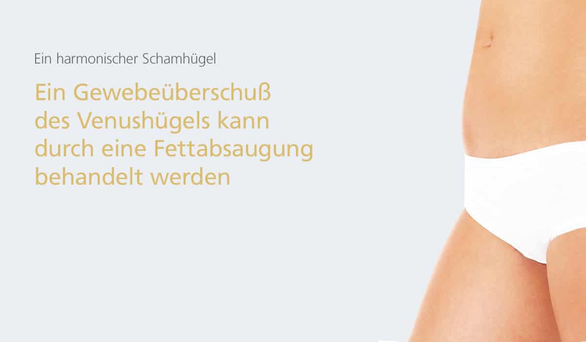 Schamhügel-Korrektur in der Klinik Dr. Katrin Müller in Hannover