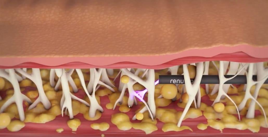 Einzigartige Behandlungsmöglichkeit der Hautstraffung mit Renuvion in der Klinik Dr. Katrin Müller in Hannover
