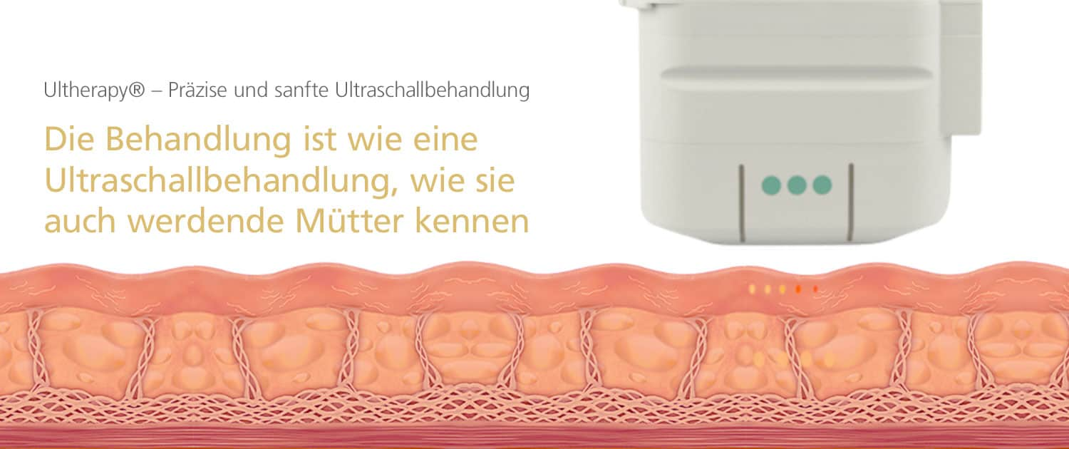 Ultherapy® Behandlung bei Dr. med. Katrin Müller in Hannover