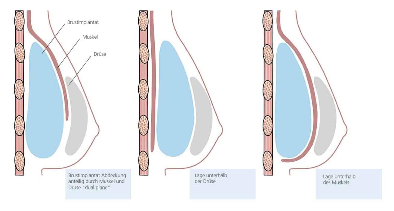 Skizze der möglichen Lage von Brustimplantaten